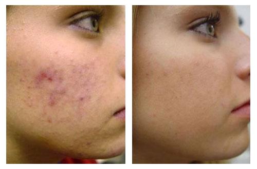 Как лечить подкожного клеща на лице