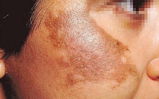 Аптечная косметика для лица для проблемной кожи