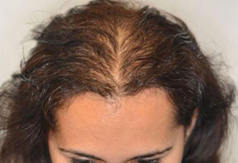 так почему выпадают лысеет голова у женщин этом